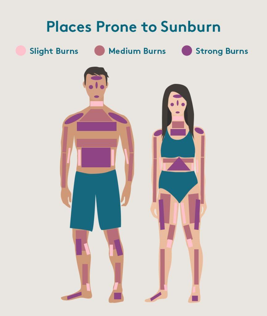 areas that get sunburnt diagram
