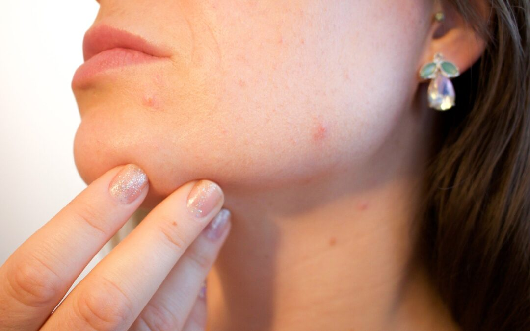 Is COVID-19 Triggering Skin Problems?