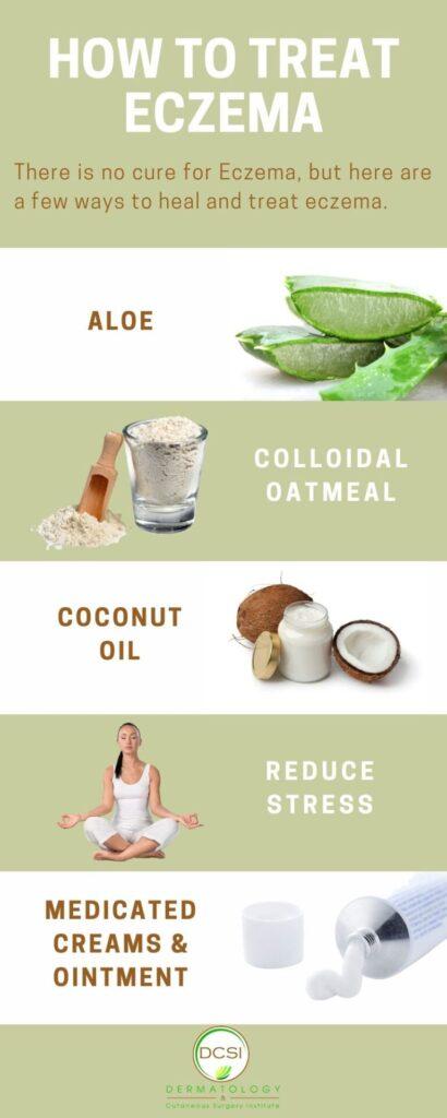 infographics on How to Treat Eczema