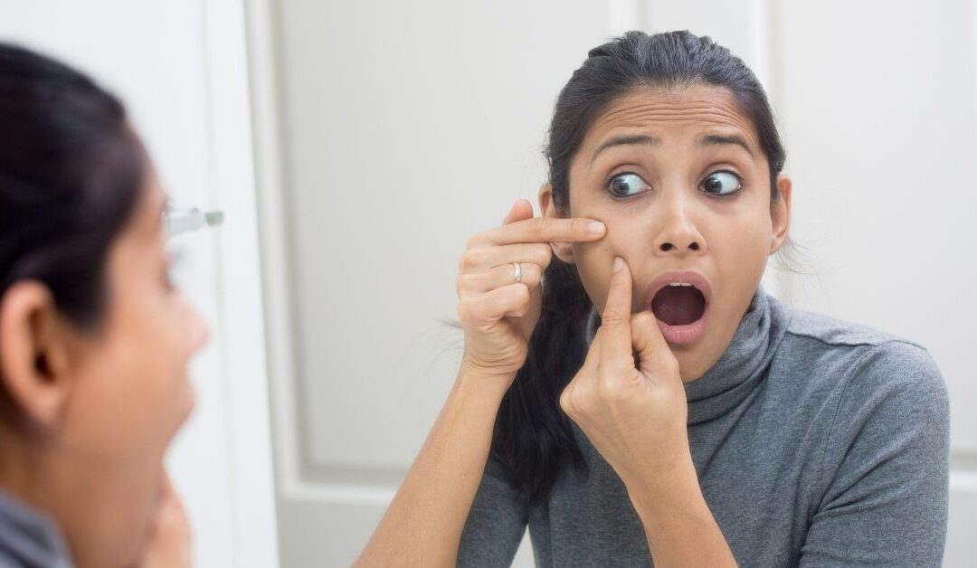 How to Remove Blackheads Properly