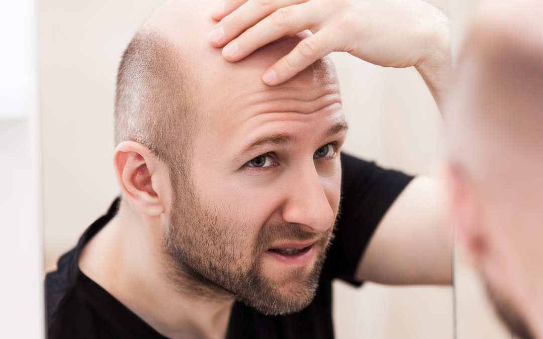 How is Baldness Genetically Inherited?